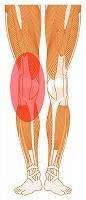 右膝の痛み