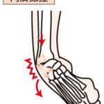 右足関節内反捻挫の画像です。