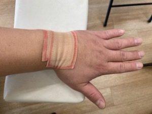 軽度の手関節捻挫のテーピング固定です。