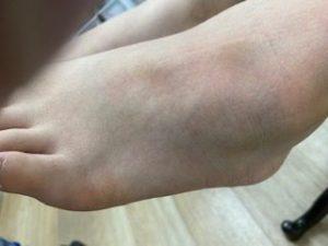 左足根骨骨折の外観の画像