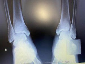 左足根骨骨折のレントゲン画像です