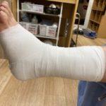 左足根骨骨折のシーネ固定の画像