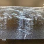 変形性膝関節症のエコー画面(両膝)です。