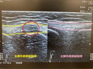 右膝外側側副靭帯損傷のエコー画面