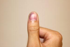 右母指のつき指による内出血