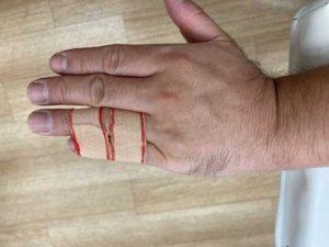 左5指突き指損傷の4・5指テーピング